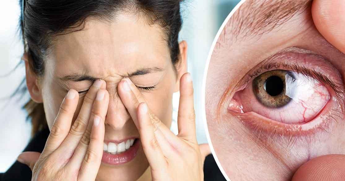 Göz Kuruluğu Neden Olur? Kontakt Lensler ve Göz Kuruluğu