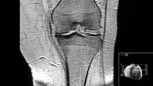 MRI'da Artrit Görünümü