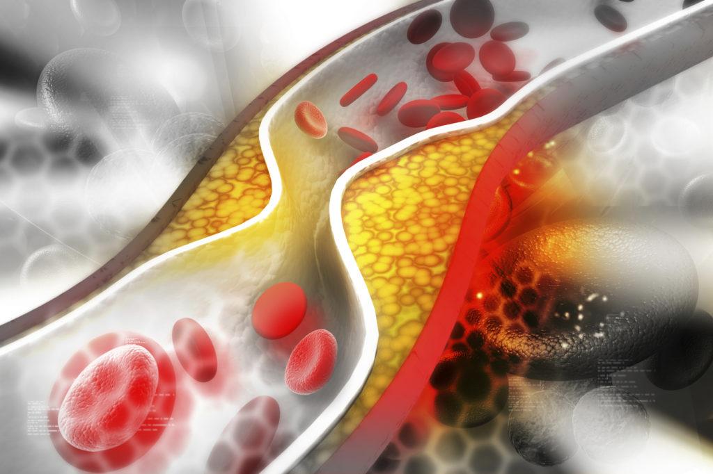 Kolesterol Hakkında Neler Biliyorsun? Soru ve Cevaplar