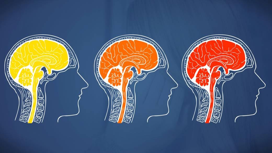 Migren ve Baş Ağrıları Arasındaki Fark Nedir?
