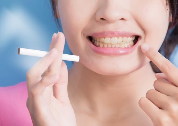 Sigaranın Dişlere Etkisi Sigarayı Bırakmanın Yolu