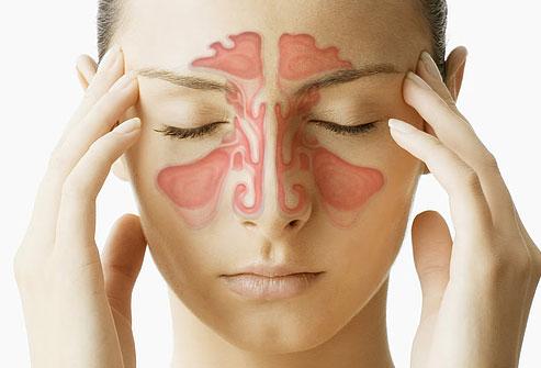 Sinüs Enfeksiyonu Belirtileri ve Sinüzit Hakkında Her Şey