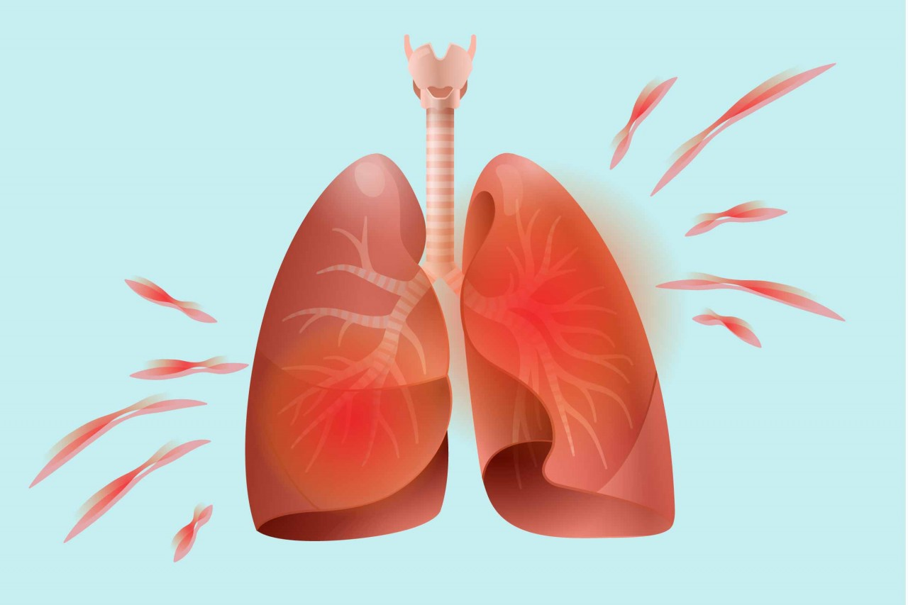 Советы по профилактике пневмонии